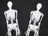 череп,_кости,_ске